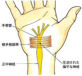 手根管症候群 整体