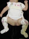 発育性股関節形成不全の予防と治療