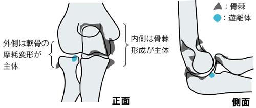 変形性肘関節症の原因と病態