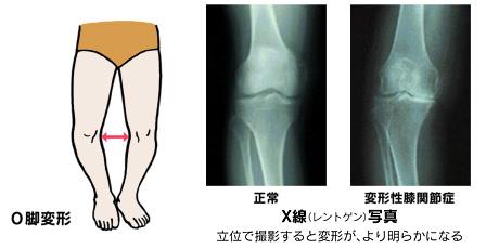 変形性膝関節症」|日本整形外科学会 症状・病気をしらべる