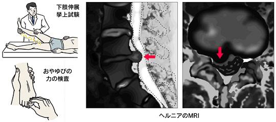 腰椎 椎間板 ヘルニア