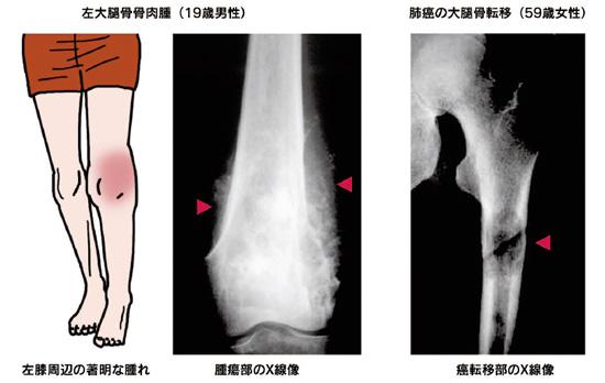 肉腫 初期 症状 骨