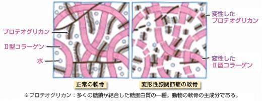 正常と変形性関節症の軟骨の模式図