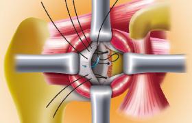 反復性肩関節脱臼の治療