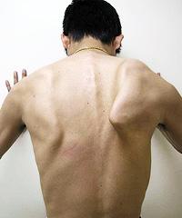 翼状肩甲骨(翼状肩甲)